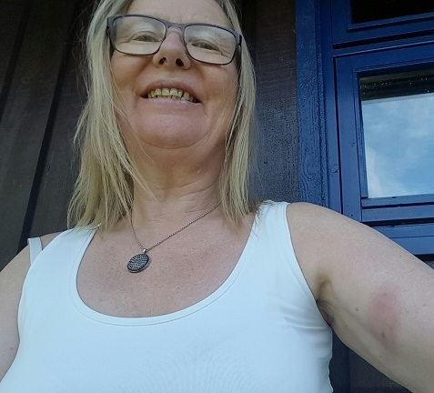 Bilde ble tatt 30 juni etter 2 døgn med antibiotika og Probiotika